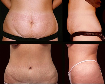 Tummy Tuck and Why You Should Have One in Mexico