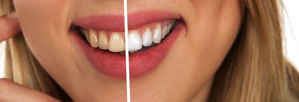 How to Have a White Tooth?